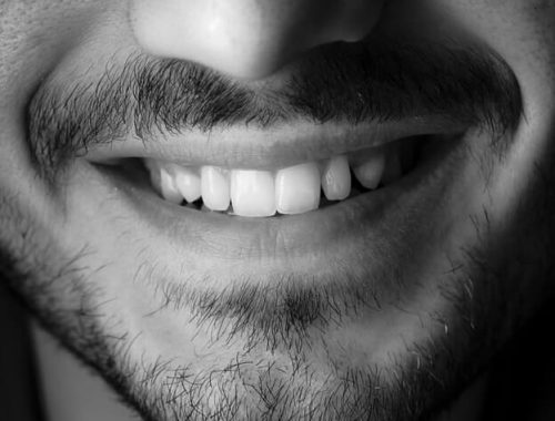 fluor - zęby